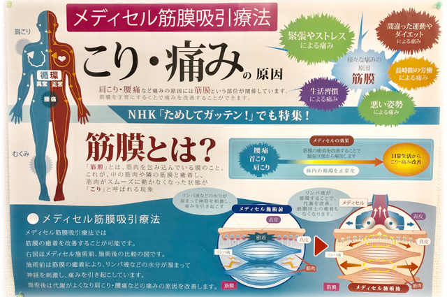メディセル筋膜吸引療法